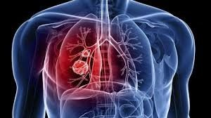 Pulmão doente